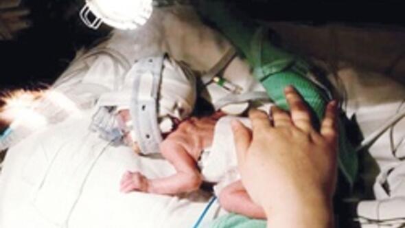 Doğumların yüzde 10'u prematüre