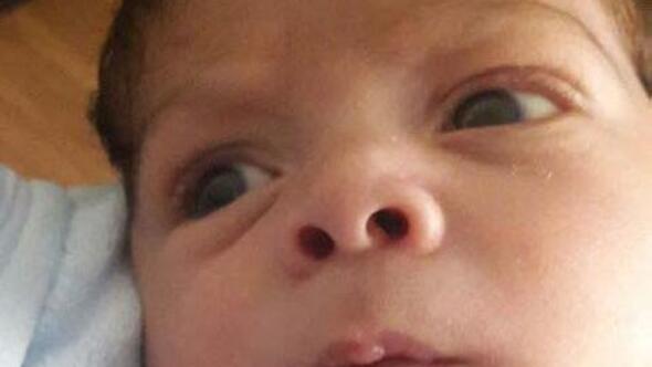 3 aylık bebeğin ölümünde ihmal iddiasına 250 bin liralık tazminat davası