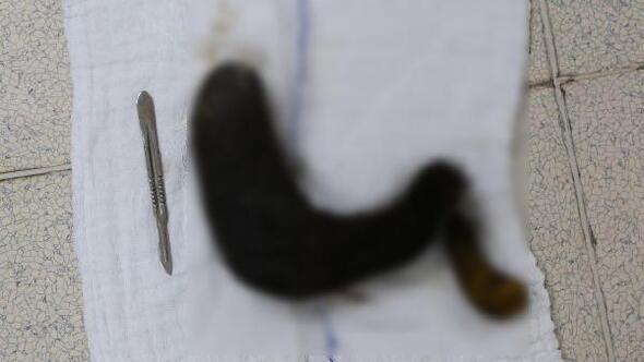 Rapunzel Sendromuna yakalanan hastanın midesinden kıl yumağı çıktı