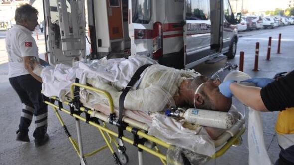 Benzin döküp kendini yakan kişi, hayata 54 gün tutunabildi