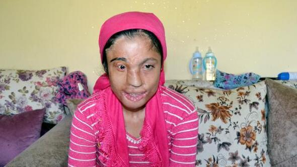 Yüzü tanınmaz hale gelen Hürü, ameliyat olmak istiyor