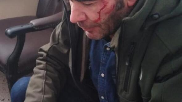 Muhabire taşlı saldırı
