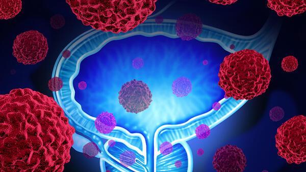 A prostat fibrózis fókusza)
