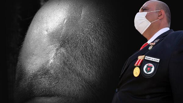 Güneydoğu Gazisi Mehmet Ali Küpeli, 13 yıldır kafasındaki Kalaşnikof mermisi ile yaşıyor