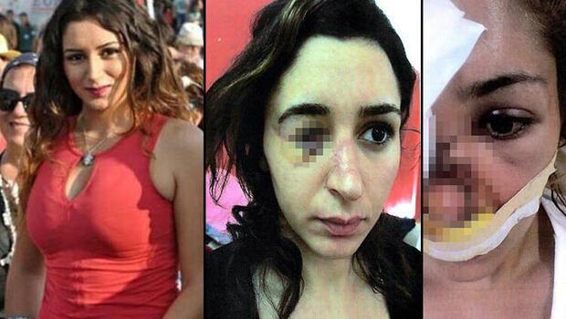 Genç kadın kâbusu yaşamıştı! İstenen ceza belli oldu