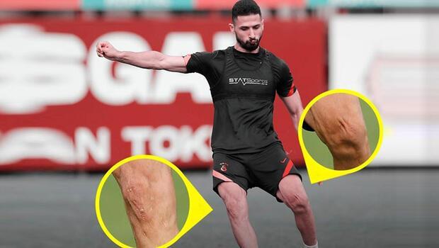 Son Dakika | Galatasaray'da Emre Akbaba'nın dikkat çeken fotoğrafı! Dizleri...