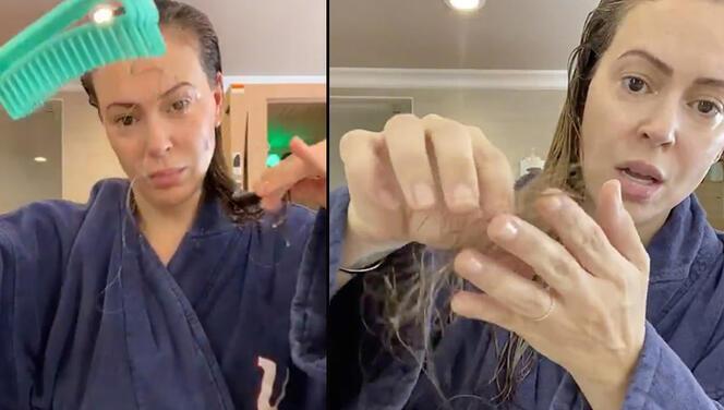 Ünlü oyuncudan şoke eden video: Koronavirüs yüzünden saçlarım avuç avuç dökülüyor