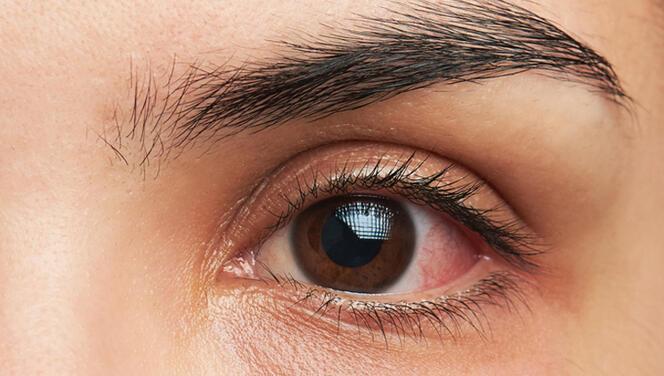 Göz kızarıklığı hangi durumda Covid-19 işareti olabilir?