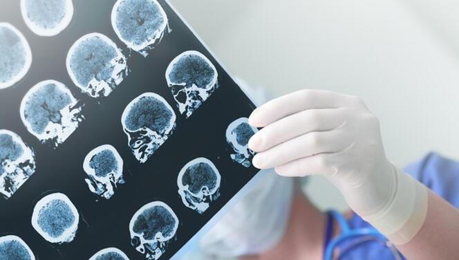 Parkinson hastalığı nedir? Parkinson belirtileri ve tedavisi