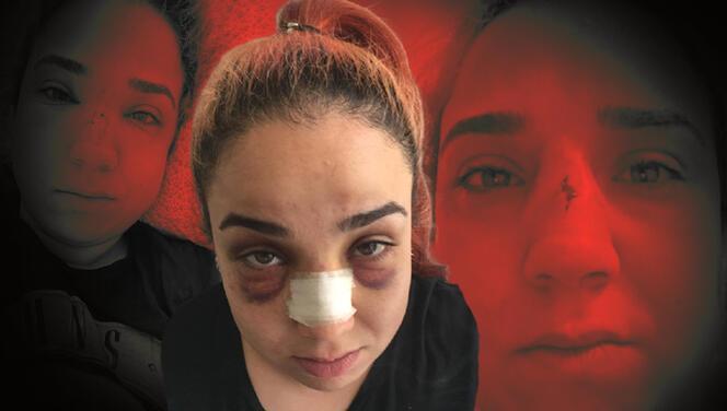 İzmir'de iş yerinde süpürgeli dehşet