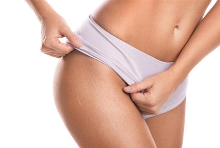 Vücut Çatlakları İçin 10 Basit Yöntem