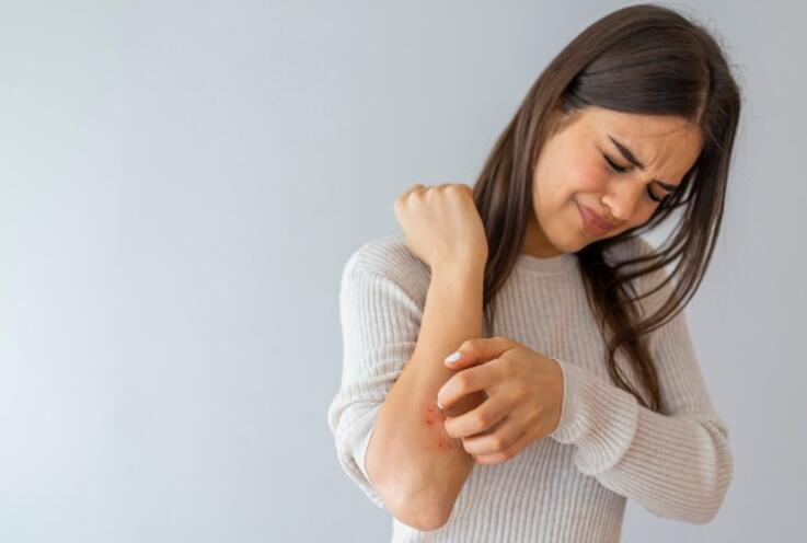 Sedef Hastalığı Nedir, Vücuda Nasıl Etki Eder?