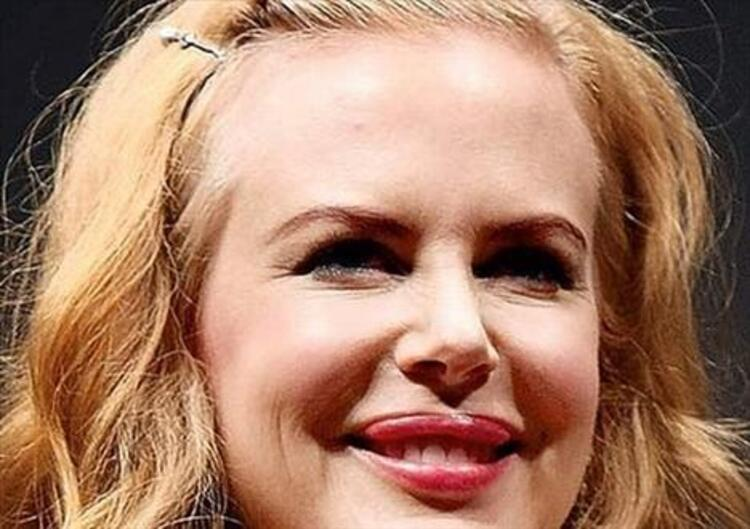 Nicole KidmanAlnı neredeyse yüzünden daha geniş.