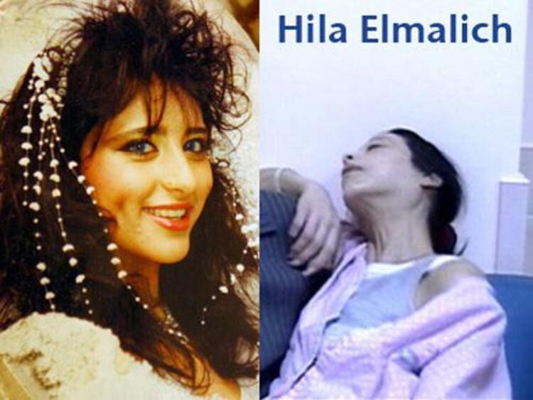 HİLA ELMALİCH