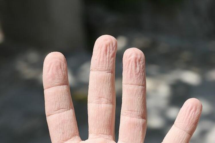 Parmaklar suda kalınca neden buruşuyor