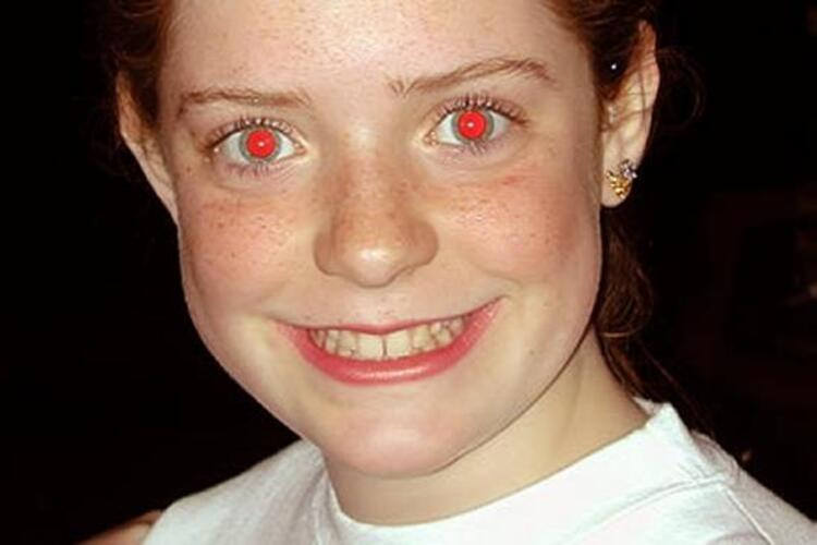 Kırmızı Gözler
