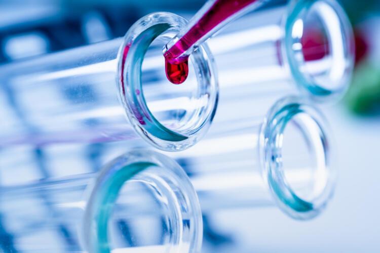 Yeni koronavirüs (2019-nCoV) nasıl tedavi edilir