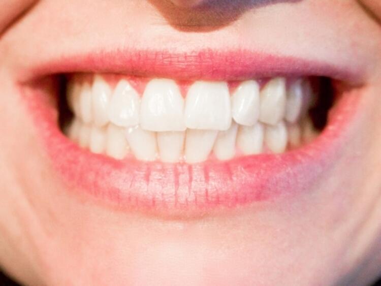 Yanlış: Diş tedavisi yapılamaz