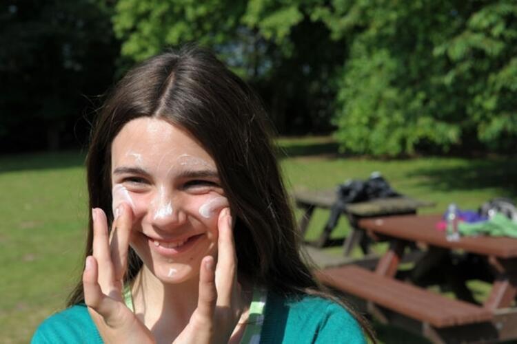 Güneş yanıklarına yoğurt ve diş macunu uygulanmamalı