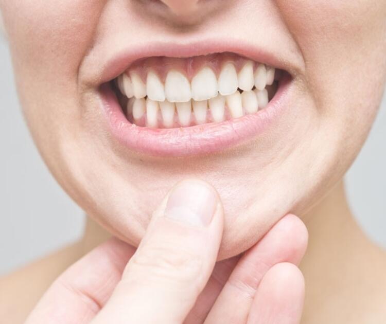 Tedavi edilmeyen diş eti hastalıkları erken doğuma neden olabilir