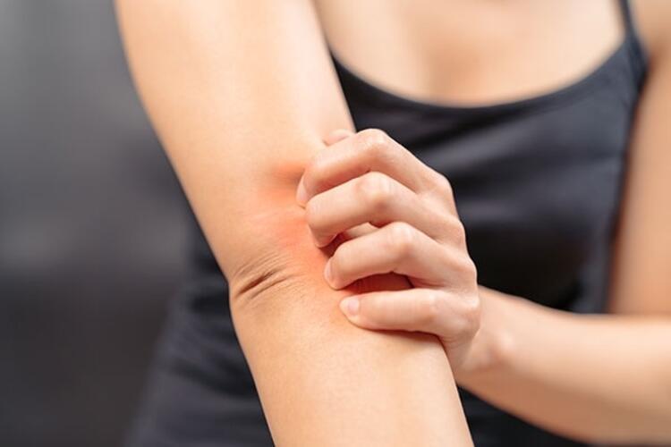 Besin alerjilerinin belirtileri nelerdir