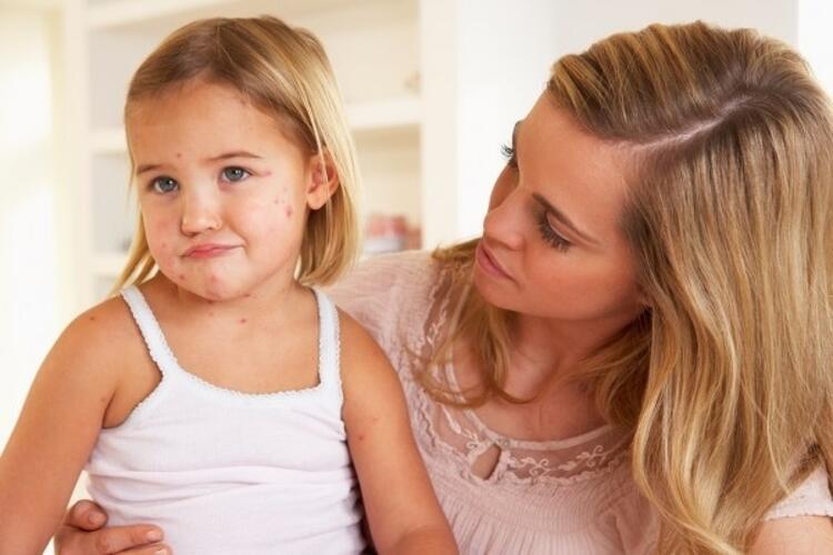Aşırı alerjik çocuklar için 5 önlem