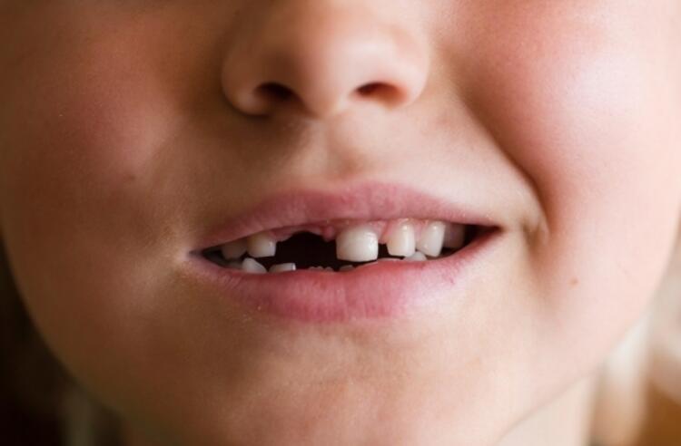 En değerli dişler hangileridir Dişlerden ne kadar kök hücre elde edilebilir