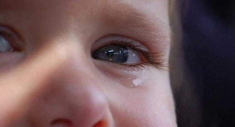 YANLIŞ: Bebeklerde gözde sulanma normaldir ve tedavisine gerek yoktur