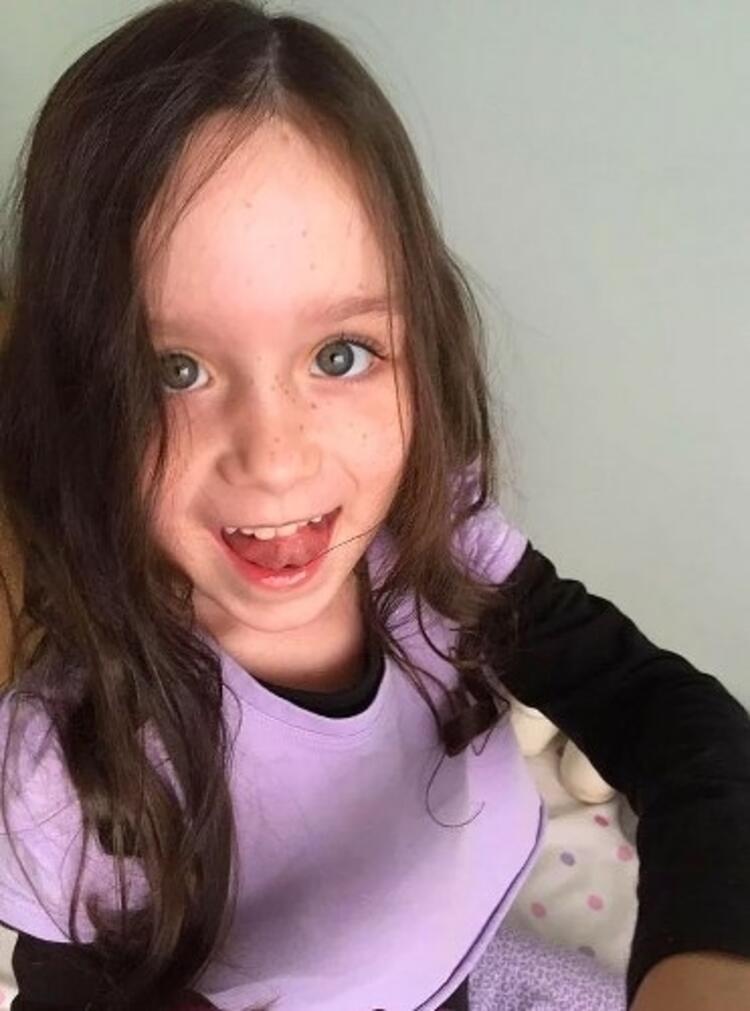 Kemoterapi görmeye başlayan Hayleynin uzun saçları ve kirpikleri ne yazık ki tedavisi sırasında dökülmüş.