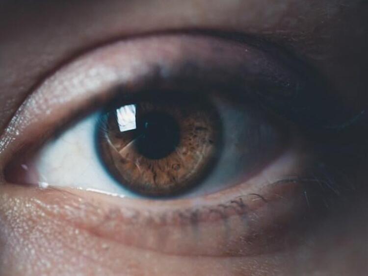 Kırmızı Göz Hastalığı belirtileri