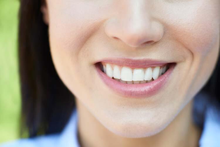 Dişleri beyazlatıyor