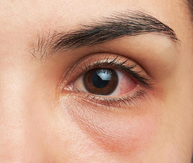 Göz tansiyonu tedavi edilmezse neye yol açar