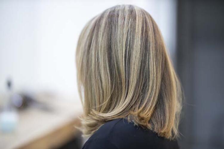 •Mevsimsel saç dökülmesi kimlerde daha çok görülür