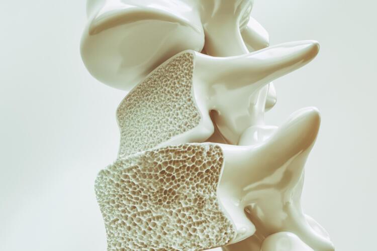 Kemik yoğunluk ölçümü yaptırın
