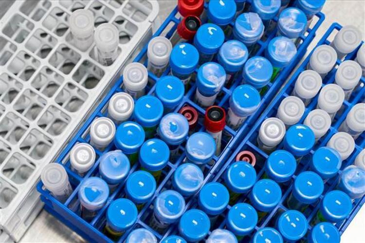 SÜde Kovid-19 aşısının hayvan deneyleri tamamlandı