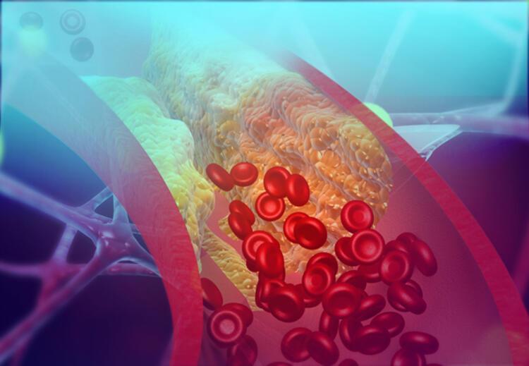 Kalp hastaları Covid-19u ağır geçiriyor