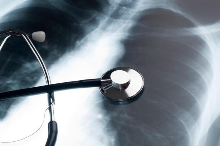 Hamilelikte akciğer grafisi ve bilgisayarlı tomografi çekilebilir mi Bebeğe zarar verir mi