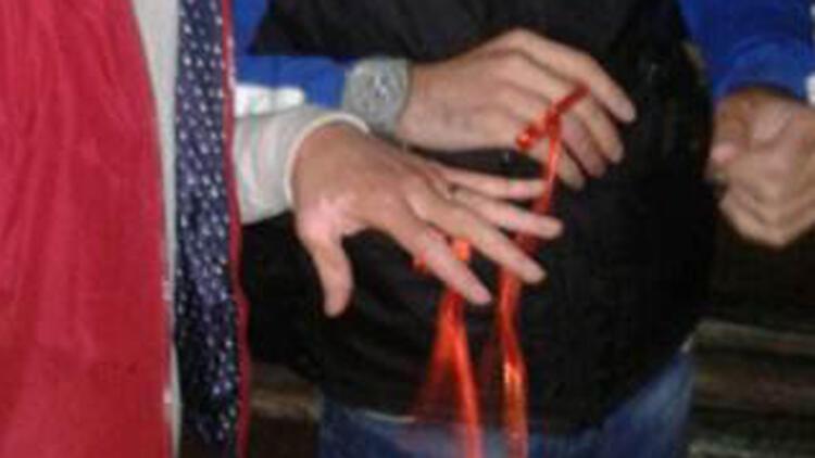 Recep Sert yüz naklinden sonra nişanlandı