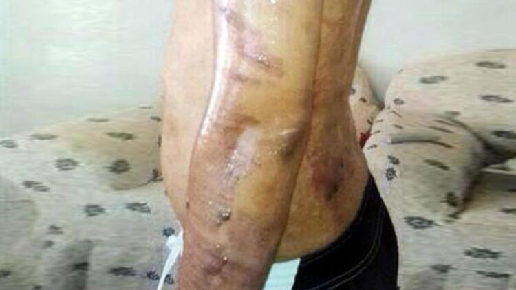 Diyarbakır'da epilasyon faciası