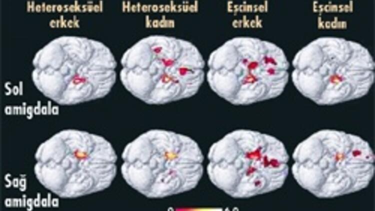 Gay erkeğin beyni ile kadınınki benzer