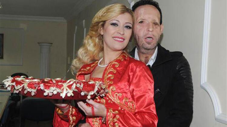 Türkiye'nin 5'inci yüz nakli hastası Recep Sert baba oluyor