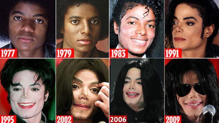 İşte Michael Jackson'ın estetik hikâyesi