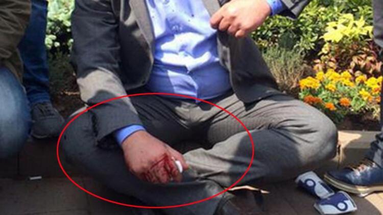 CHP'li vekilin eli kanlar içinde kaldı