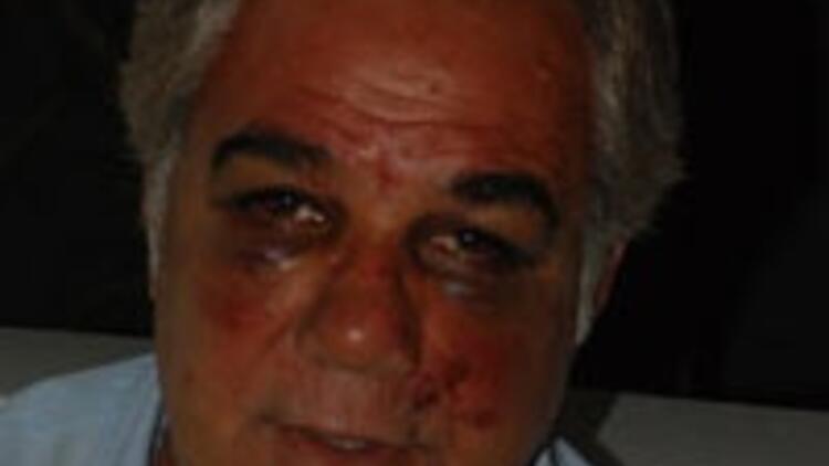 Faruk Tınaz'a para cezası