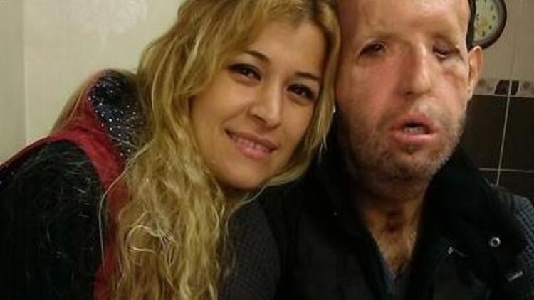 Türkiye'nin beşinci yüz nakli hastası Recep Sert'in eşi isyan etti