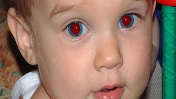 Fotoğraflardaki kırmızı göz etkisine sebep olan şey nedir?