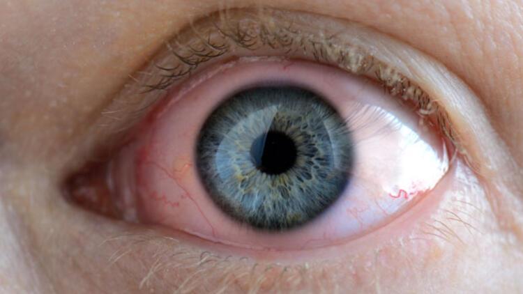 Gözde kırmızılık tehlikeli olabilir