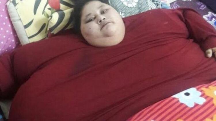 'Dünyanın en kilolu kadını' ameliyat için Hindistan'da
