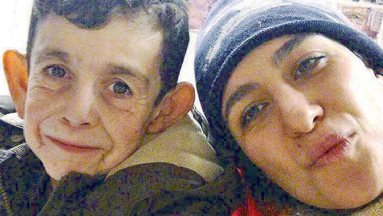 Suriyeli 'Benjamin Button'ın hayatı  bir fotoğrafla nasıl değişti?