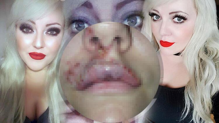 Bir genç kadın daha dudak dolgunlaştırma operasyonunda enfeksiyon kaptı